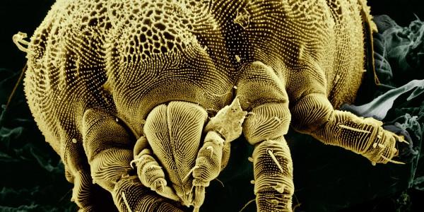 Come eliminare gli acari della polvere da casa tua mentre for Acari polvere