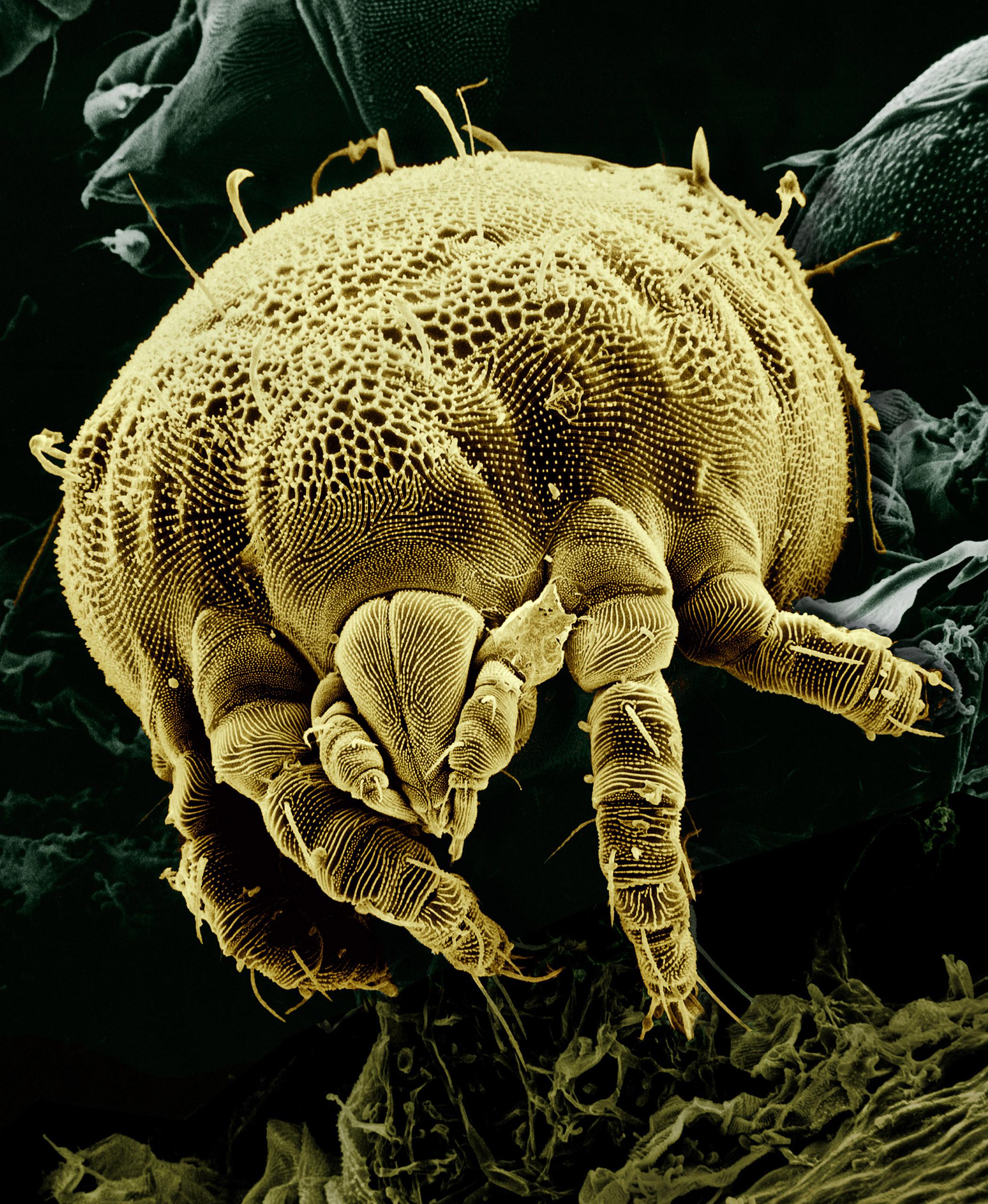 Come Uccidere Acari Della Polvere come eliminare gli acari della polvere da casa tua mentre